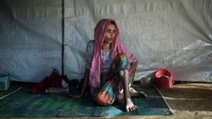 Une réfugiée musulmane rohingya, en décembre2017, montre sa blessure par balle causée par l'armée birmane lors de sa fuite.