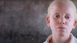 Annie Alfred, 10 ans, une Albinos qui vit au Malawi.