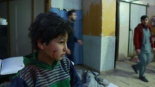 طفل جريح في أحد المستشفيات الميدانية في دوما في الغوطة الشرقية 23 شباط/فبراير 2018