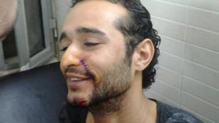 أحمد دومة بعد مواجهات بين موالين ومناهضين للرئيس مرسي في 5 ديسمبر