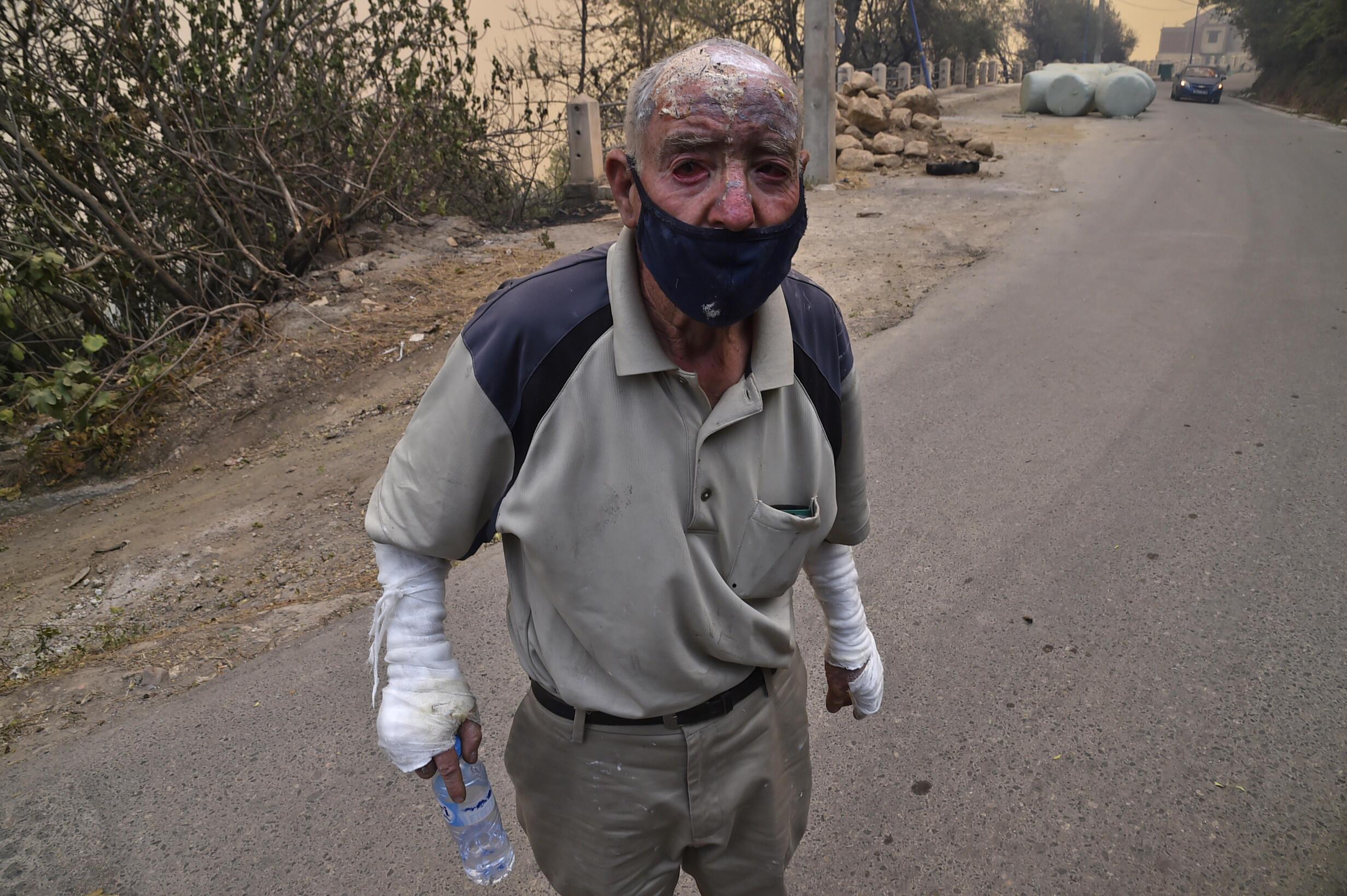 Une personne est blessée lors d'un incendie de forêt à Tizi Ouzou