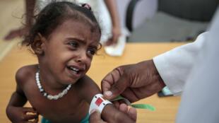 Imagen de archivo. Un médico mide el brazo de una niña con desnutrición en el Centro de Salud Aslam, Hajjah, en Yemen el 1 de octubre de 2018.