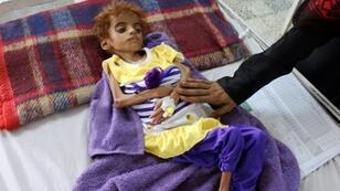 A Yemeni child suffering from malnutrition is measured at a hospital in the Hajjah province, western Yemen, this month