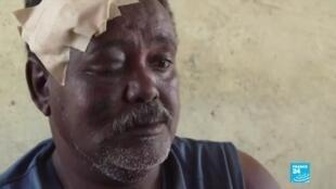 2020-11-16 08:02 Ethiopia fighting: Refugees fleeing across the border into Sudan