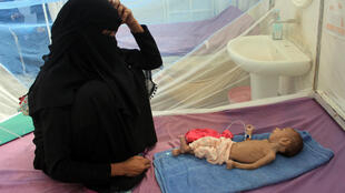 A woman sits with a Yemeni child suffering from malnutrition at a care centre in Yemen's northern Hajjah province