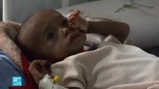 طفل يمني يرقد في المستشفى، الصورة ملتقطة من شاشة فرانس24