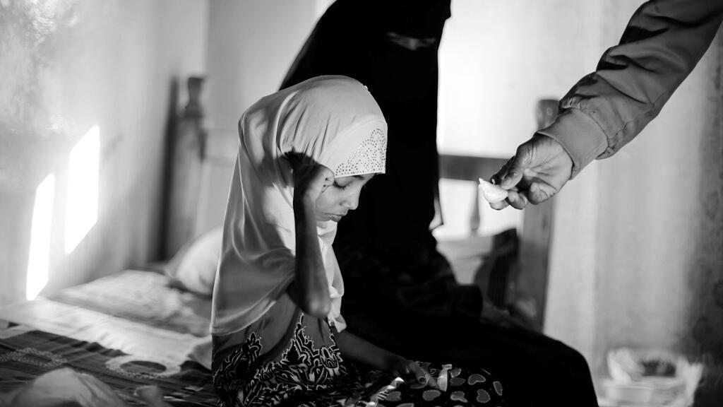 Afaf Hussein, de 10 años, con problemas de desnutrición, se sienta junto a su madrastra mientras su padre Hussein Abdu, de 40 años, le da una rodaja de naranja en un hotel en Saná, Yemen, el 14 de febrero de 2019.