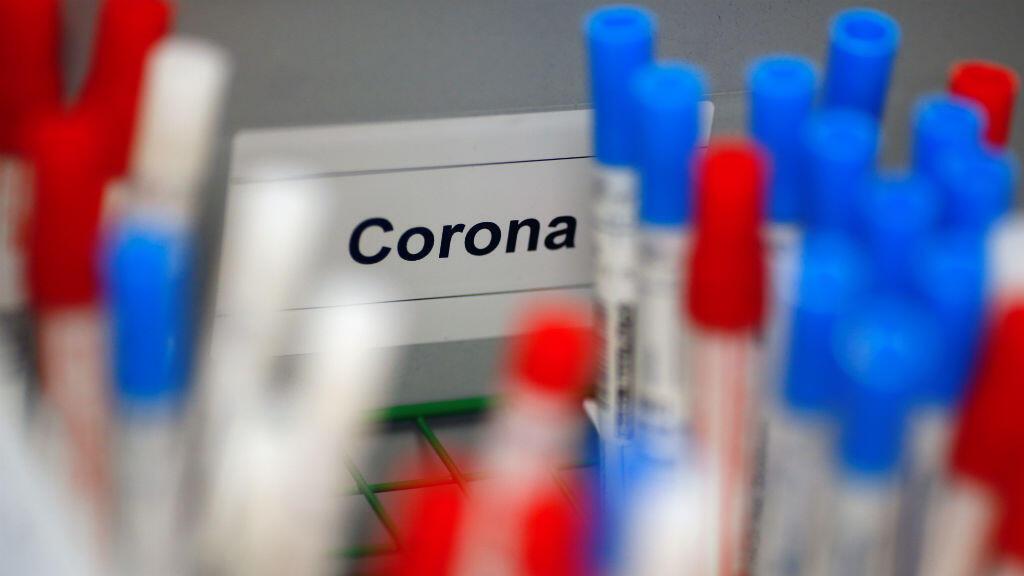 Los frascos de plástico que contienen pruebas para el coronavirus en un laboratorio médico en Colonia, Alemania, el 24 de marzo de 2020.