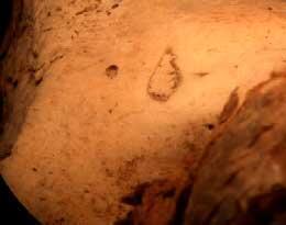 Cicatrice à la lèvre supérieure droite dûe à l'attentat manqué de Jean Chastel en 1594. (Cliché : Dr.Charlier)