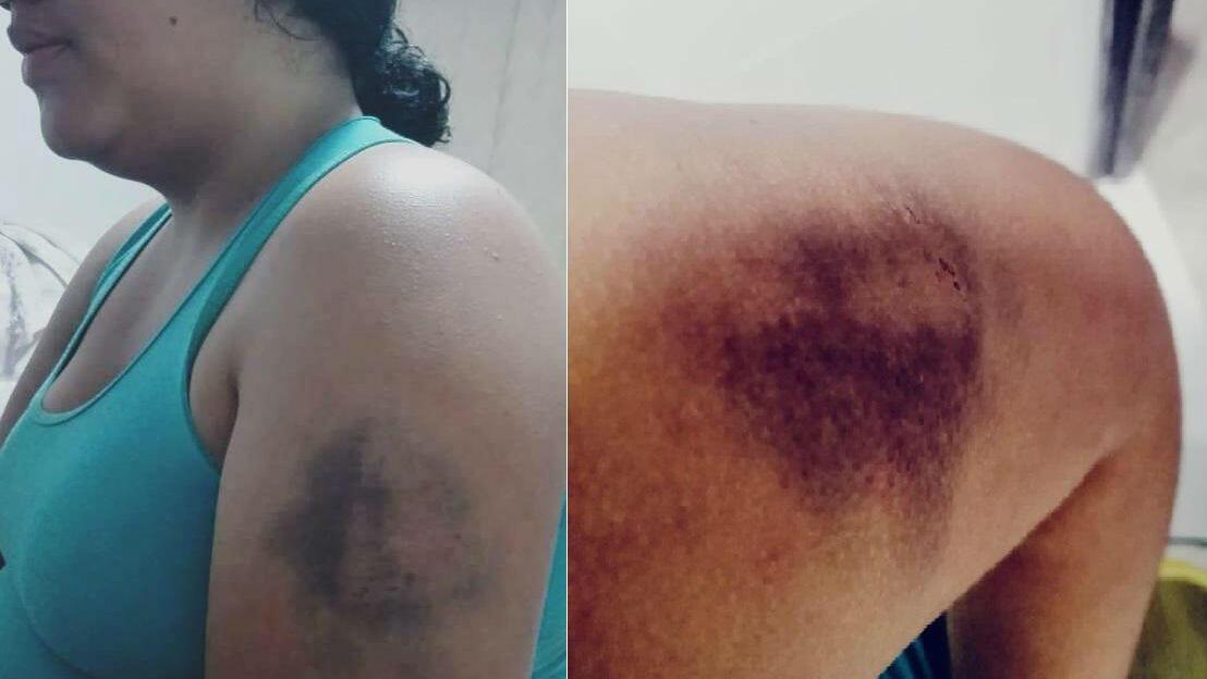 Imagen de Natalia Gema Rocero Cruz, uno de los casos de violencia desmedida y detención arbitraria documentados por HRW en Colombia.