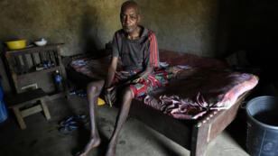 Le réfugié camerounais Ben Ojometa, 75 ans, se rétablit des suites de ses blessures subies lors d'une descente des militaires camerounais dans le sud-est du Nigeria, le 2 février 2018.