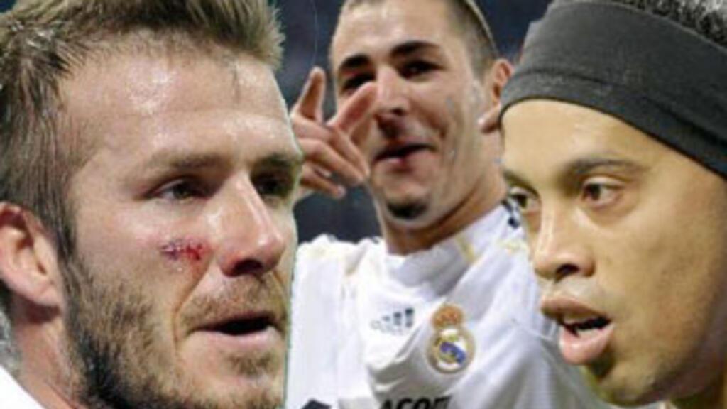 Beckham, Benzema, Ronaldinho… Gros plan sur les grands
