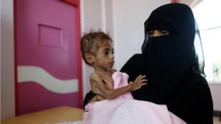 Una mujer sostiene a su hijo en un centro de tratamiento de desnutrición en Saná, Yemen, el 7 de octubre de 2018.