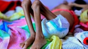 Pictures of starving Yemeni children has stoked opposition to a Saudi-led drive against Huthi rebels in the country