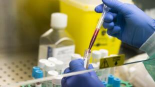 """Une étude de chercheurs français montre que le déficit dans le sang d'une protéine normalement produite par le système immunitaire """"pourrait être la marque des formes graves de Covid-19"""""""