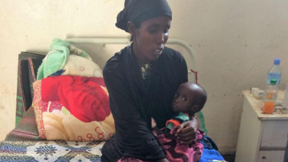 Víctimas de la sequía, una madre desnutrida y su hijo en el hospital de Burao, Somalilandia.