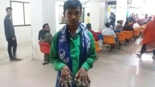 Abul Bajandar, dubbed the Bangladeshi 'Tree Man', suffers from a rare genetic condition that dozens of surgeries have failed to cure
