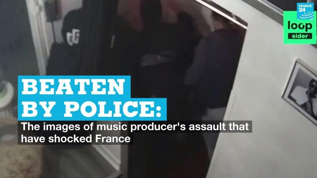 Beaten by police: The images of music producer's assault that have shocked France