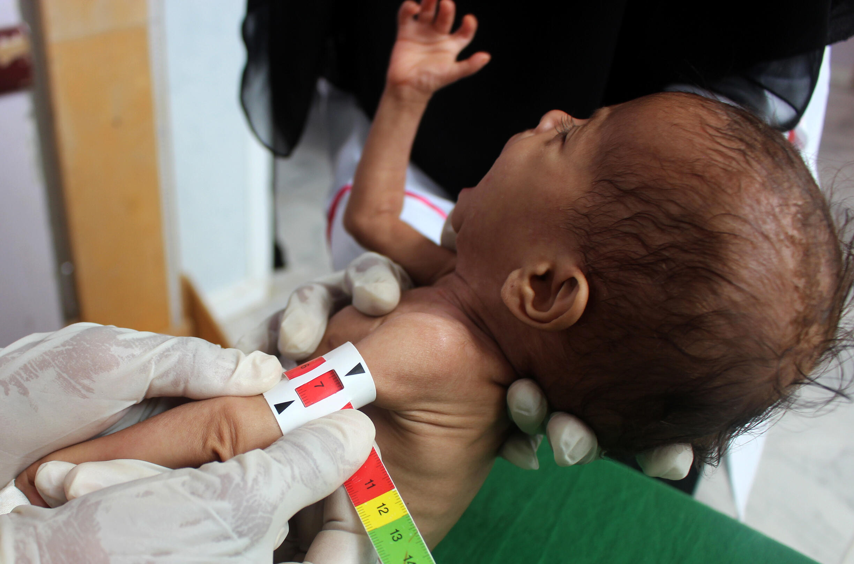 La pandémie de Covid-19 a aggravé la faim dans le monde, selon un rapport annuel de l'ONU publié le 13 juillet 2020.