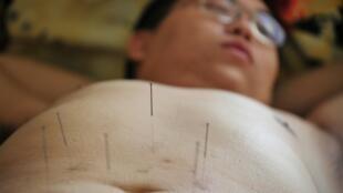 Un patient reçoit un traitement d'acupuncture le 18 novembre 2008 à Tianjin, dans le nord de la Chine