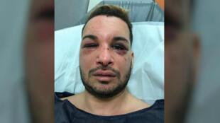 Des photos de Zak Ostmane, visage tuméfié, ont circulé sur les réseaux sociaux.