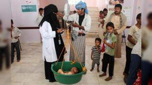 Personal médico pesa a un niño que sufre desnutrición en un hospital en el distrito norteño de Abs, en la provincia noroccidental de Hajjah, en Yemen, el 19 de septiembre de 2018.