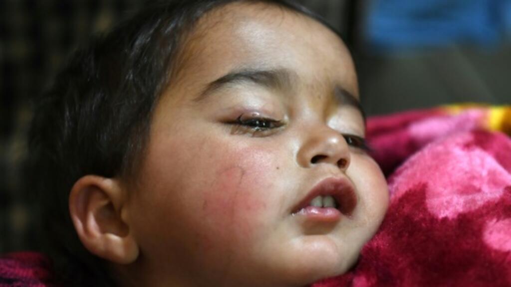 Indian pellet guns in Kashmir kill, blind and enrage