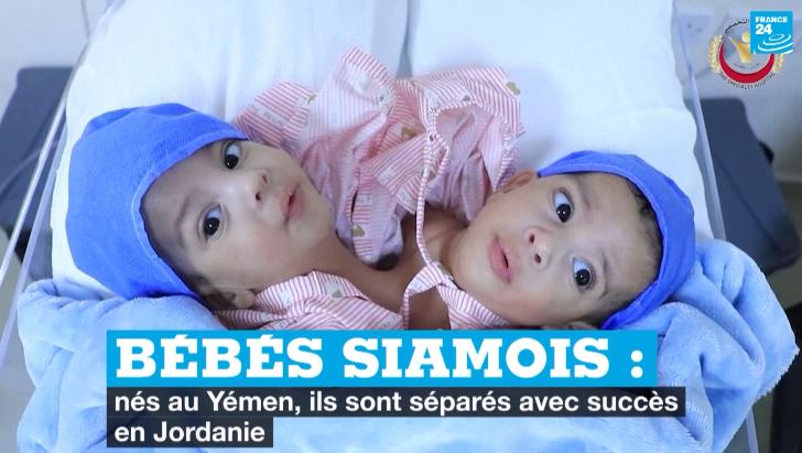 Bébés siamois : nés au Yémen, ils sont séparés avec succès en Jordanie