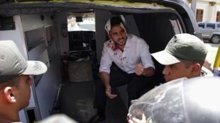 أحد المصابين إثر اقتحام موالين للسلطات حدائق البرلمان الفنزويلي في 06/07/2017