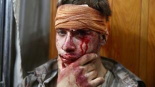 Un jeune Syrien blessé, dans la région de Douma, à l'est de Damas, après une attaque des forces gouvernementales, le 16 août 2015.