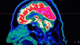 Imagen del escáner de un cerebro humano en una pantalla del Centro Hospitalario Universitario y Regional de Brest, el 9 de enero de 2019 al oeste de Francia