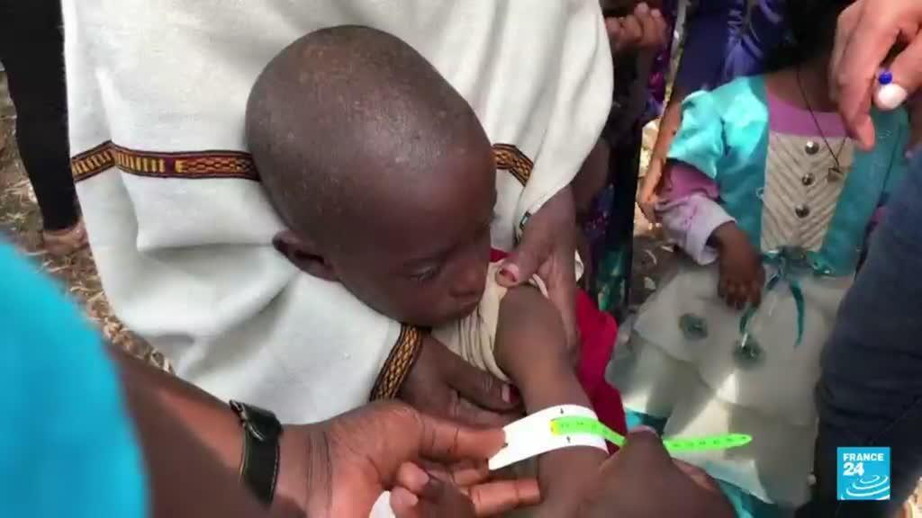 2021-07-30 22:03 Etiopía: hay 100.000 niños en peligro de morir por desnutrición en Tigray, según Unicef