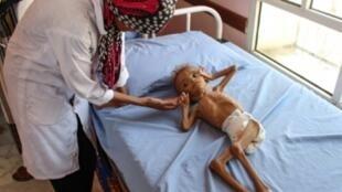 ممرضة تسعف طفلا يعاني من سوء التغذية في مستشفى بمنطقة عبس في محافظة حجة شمال اليمن، 19 أيلول/سبتمبر 2018