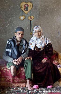Mahmoud Zorba, 18 ans, a perdu la jambe, un doigt et un oeil lorsqu'un missile s'est abattu sur le balcon de son voisin, en janvier 2009, à Gaza. Photo prise en février 2010.