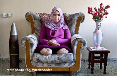 Jamila Al-Habash, 16 ans, a été touchée par un missile à Gaza en janvier 2009, alors qu'elle jouait sur le toit de sa maison. L'obus au phosphore figurant sur la photo a été retrouvé par son père dans le jardin d'une autre maison. Photo prise en février 2010.