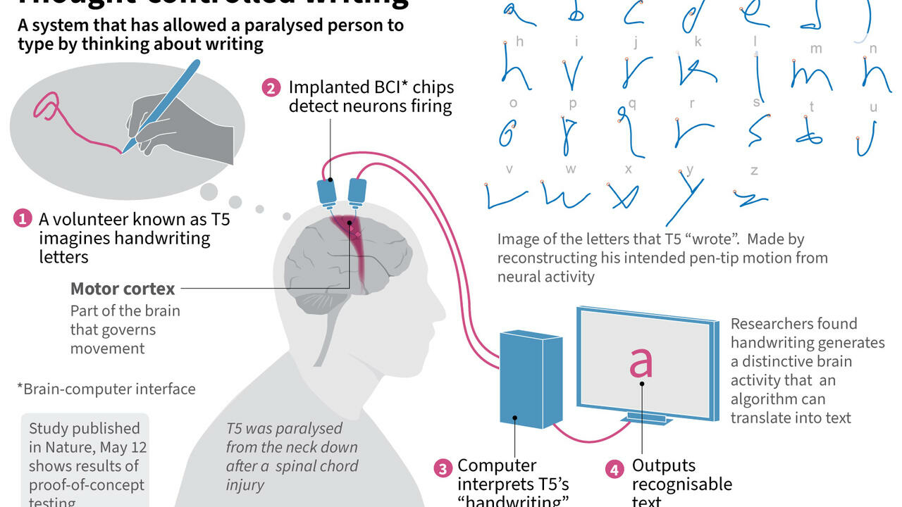 Mind over matter: brain chip allows paralysed man to write - France 24
