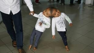 The twins, named Rabeya and Rukaya, had their skulls and brains successfully separated in a marathon 30-hour operation carried out by Hungarian surgeons