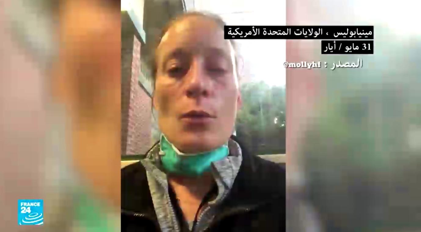 صحفية أمريكية تروي كيف تعرضت للعنف من الشرطة خلال تغطية إحدى المظاهرات