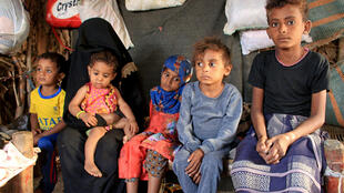 2020-12-03T080849Z_2125918155_RC2KFK98Y7N2_RTRMADP_3_YEMEN-SECURITY-MALNUTRITION