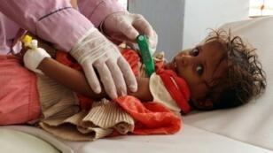 """طفلة يمنية، مشتبه بإصابتها بالكوليرا، تخضع لفحص طبيب في مستشفى مؤقت تديره منظمة """"أطباء بلا حدود"""" في محافظة حجة في 16 تموز/يوليو 2017"""