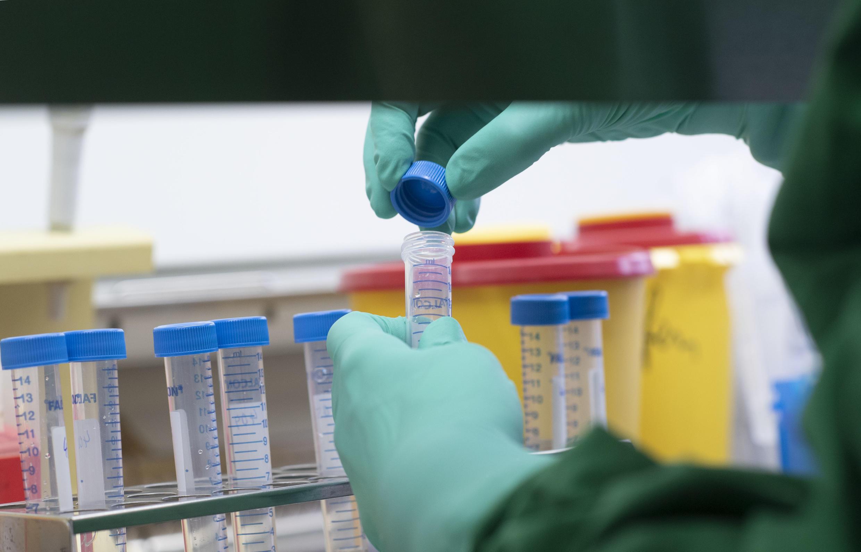 أكثر من 30 دراسة في فرنسا سعيا لتطوير علاج لفيروس كورونا