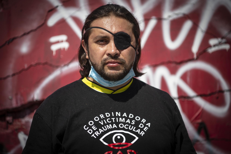 Felipe Riquelme, de 41 años, posa frente al monumento a la Policía chilena, donde fue alcanzado por una bomba lacrimógena que lo dejó ciego de un ojo mientras participaba en una protesta en Santiago un año atrás.