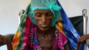 Saïda Ahmad Baghili à l'hôpital Al-Thawra dans la ville de Hodeida.