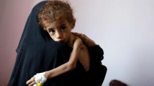 Une femme tient dans ses bras un enfant souffrant de malnutrition dans un hôpital à Sanaa, le 6 cotobre 2018.