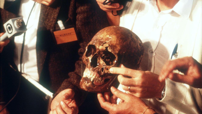 Le crâne de Josef Mengele est montré à la presse le 6 juin 1985 au Brésil.