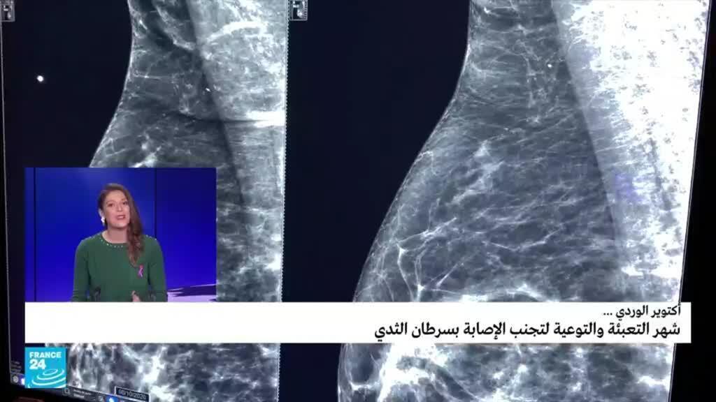 صورة ملتقطة عن الشاشة.